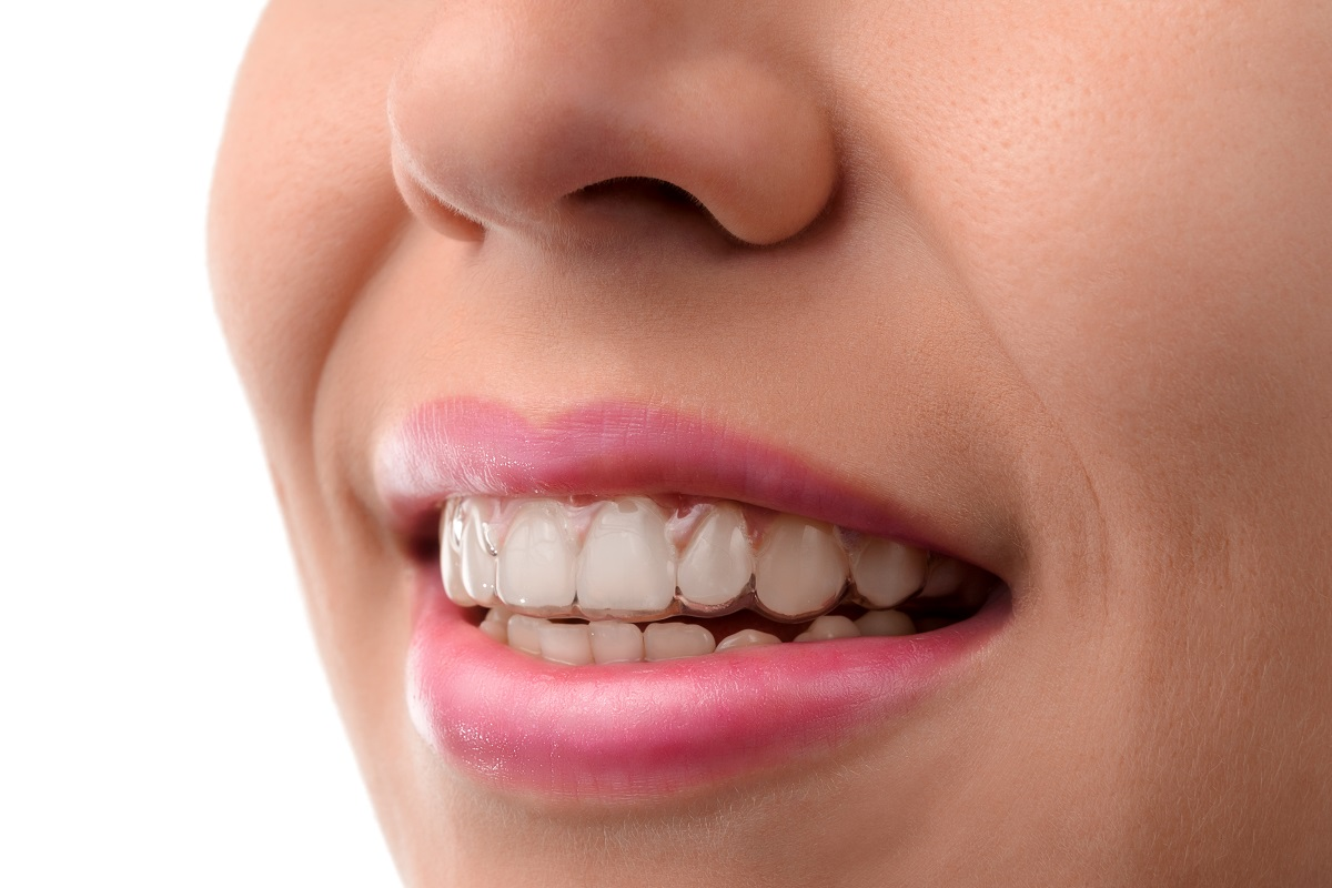 smiling with invisalign